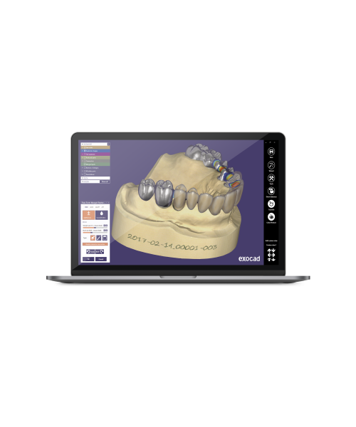 LES LOGICIELS 3D DENTAIRES CAD/CAM Logiciel EXOCAD Dental CAD 3D