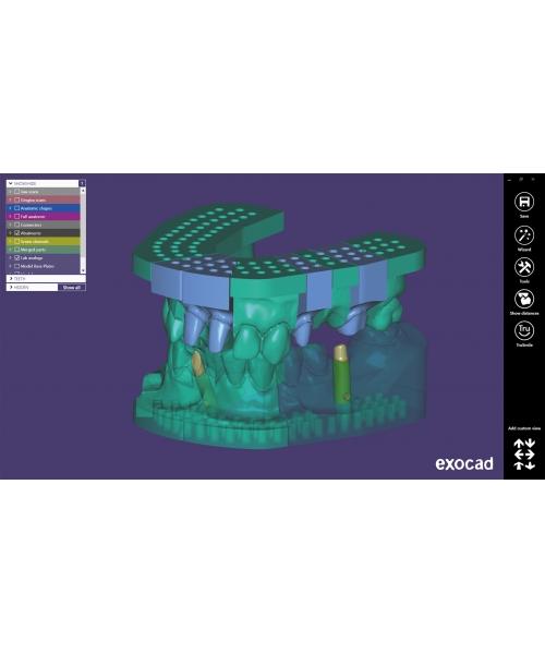 LES LOGICIELS 3D DENTAIRES CAD/CAM Module CREATEUR DE MODELE Exocad