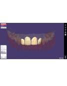 LES LOGICIELS 3D DENTAIRES CAD/CAM Module CROQUILLE PROVISOIRE Exocad