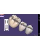 LES LOGICIELS 3D DENTAIRES CAD/CAM Module TRUSMILE Exocad
