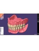 LES LOGICIELS 3D DENTAIRES CAD/CAM Module PROTHESES COMPLETES Exocad