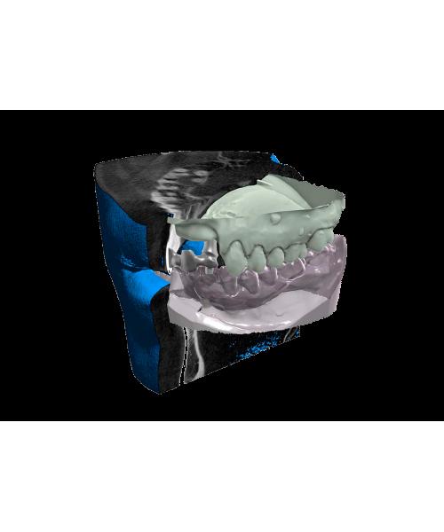 LES LOGICIELS 3D DENTAIRES CAD/CAM Module DICOM VIEWER Exocad