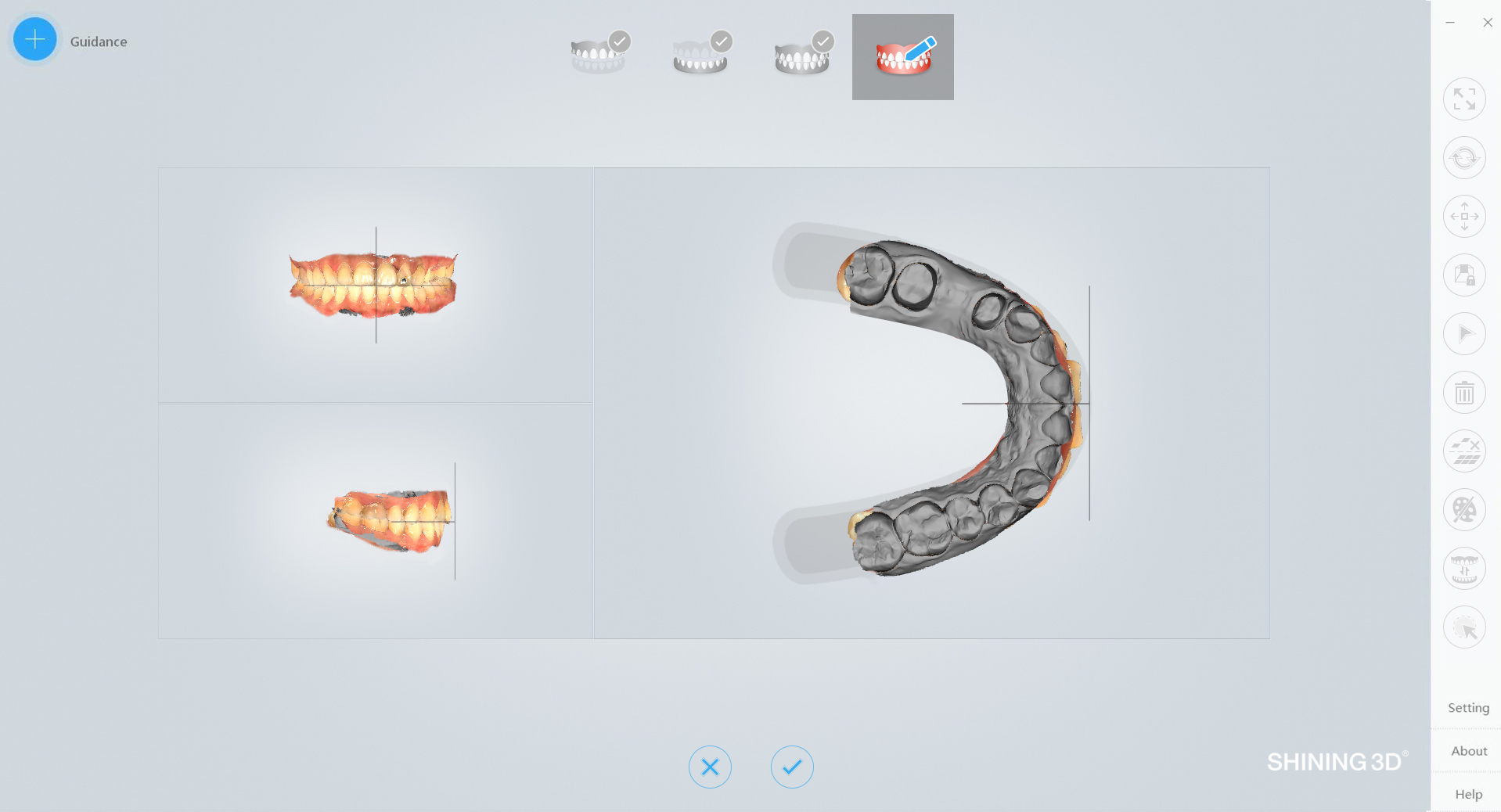 scanner 3D orthodontie