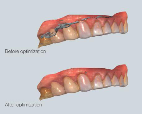 optimisation de scan 3D