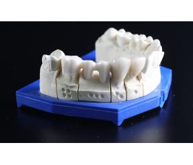Quel avenir pour la technologie 3D dans le monde dentaire ?