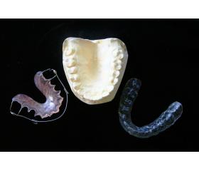 La 3D dans le milieu de l'orthodontie
